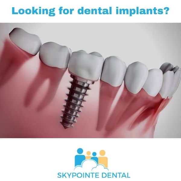dental implants calgary ne