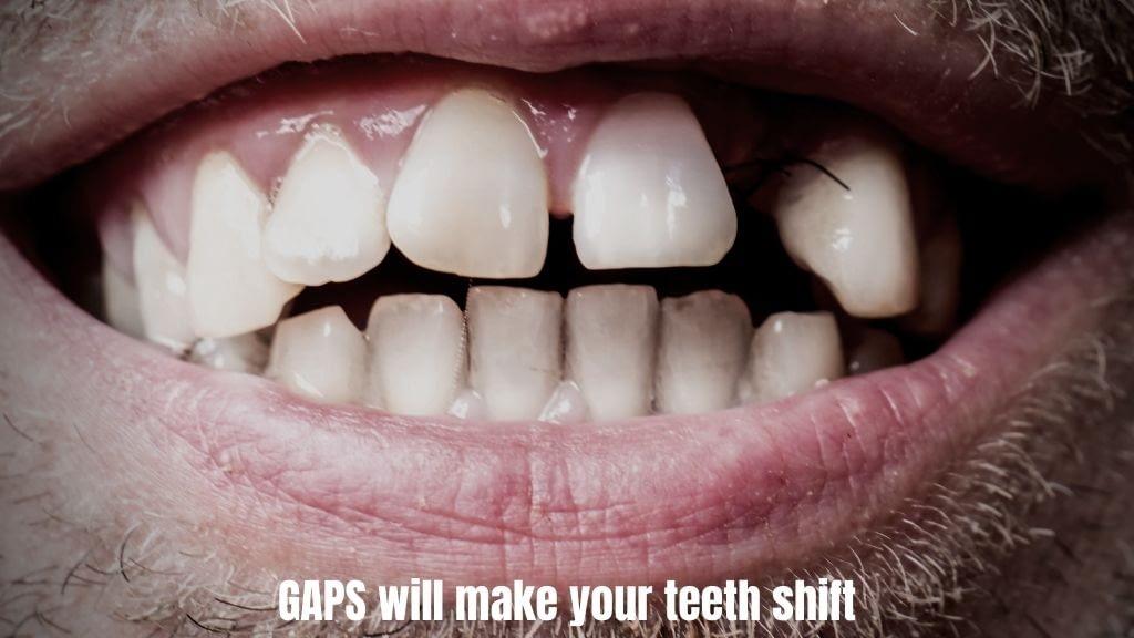 implants-dentist-calgary-ne