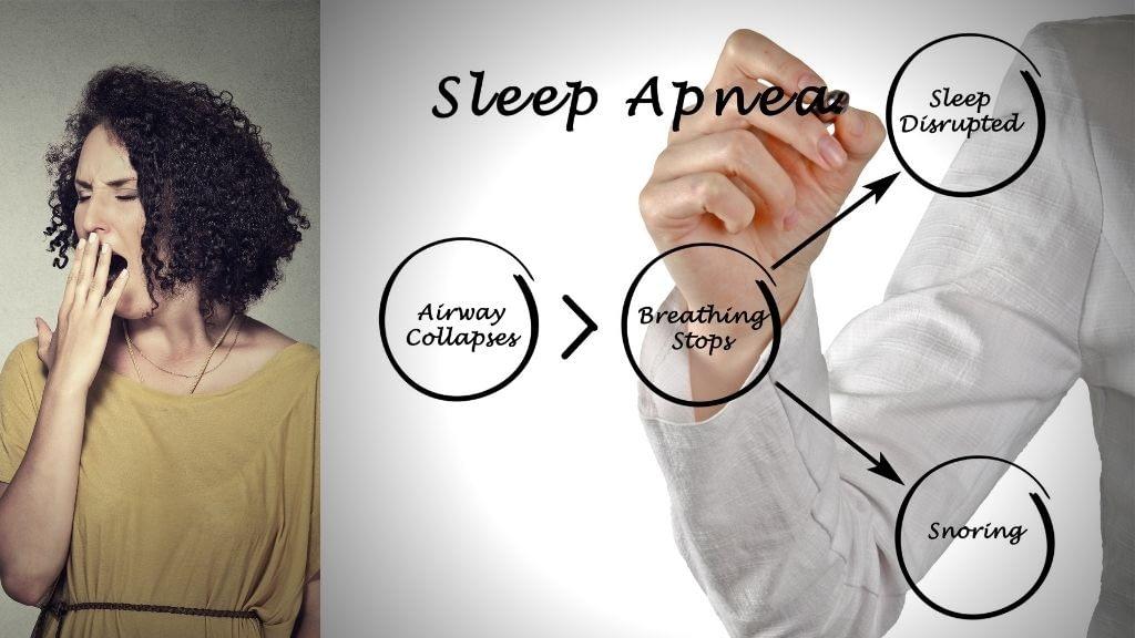 dentist-sleep-apnea
