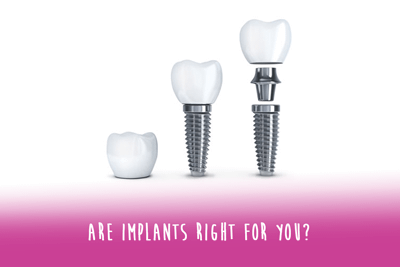 Dental Implants - A great option to replace missing teeth in Airdrie AB