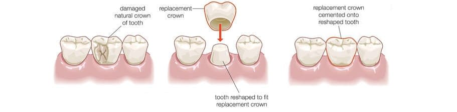 How a dental crown works in Airdrie, AB