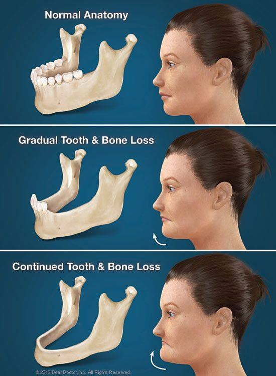 facial structure and tooth loss