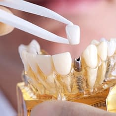 dental implants airdrie