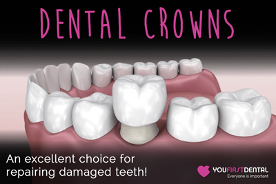 Repairing Damaged Teeth: Why Dental Crowns Are Excellent Choice