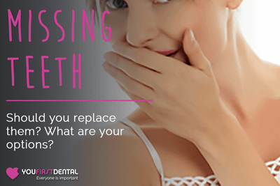 Should You Replace Missing Teeth with Dental Implants? What Are Your Options?